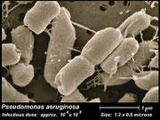 Pseudomonaden vor einer Hohlfasermembrane