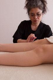 ▲下肢の経穴(ツボ)に刺鍼中
