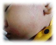 アレルギー症状 生後1歳9ヵ月