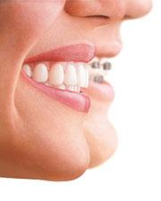 Durchsichtige Zahnspange Heppenheim