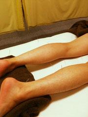 ふくらはぎの痛み 治療 港区 鍼灸