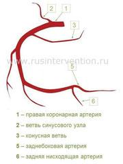 Коронарография сколько длится процедура