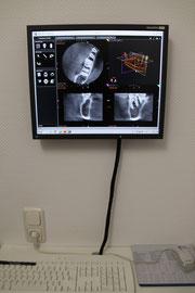 Präzise 3 D-DVT-Diagnostik zur Planung chirurgischer Eingriffe