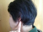 耳の下の出っ張りの前のくぼみ