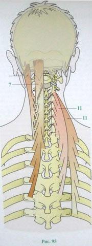 Элеваторы мышцы колодки тормозные передние на фольксваген транспортер