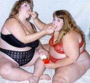 obesità bendaggio gastrico