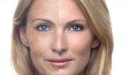 Invecchiamento cutaneo: rimedi