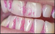 Anfärben von Zahnbelag zur Putzkontrolle (© proDente e.V.)