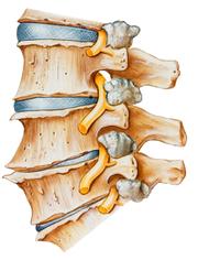 腰の不安定化はぎっくり腰や急性腰痛の原因となることがあります