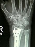 Handgelenksbruch nach Verplattung