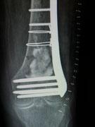 Kniegelenknaher Oberschenkelbruch, stabilisiert durch Platte und Knochenersatzmaterial