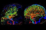 Perfusion Gehirn