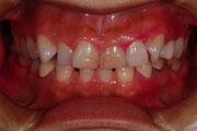 審美歯科と歯の形