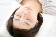 桃かお鍼灸院の美肌鍼灸