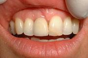 Résultat de la dent posée à 2 mois