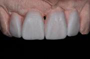 """Vervollständigung der Zahnform am Modell (""""Wax up"""")"""