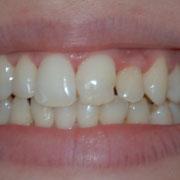 central y lateral izquierdos con esmalte irregular