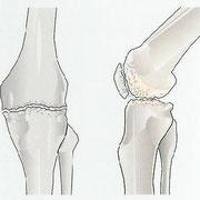 Arthrose Kniegelenk
