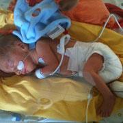Das Frühgeborene obwohl zu früh geboren. Es ist mit allem was es zum Leben braucht ausgerüstet.