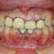 審美歯科と歯茎の位置