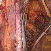 Completamento di linfadenectomia pelvica sinistra.