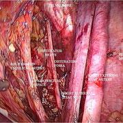 Anatomia della fossa paravescicale e otturatoria.