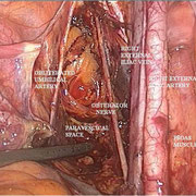 Anatomia del retroperitoneo pelvico.