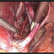 Medializzazione dei vasi iliaci esterni.