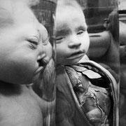 Enfant présentant un défaut de fermeture