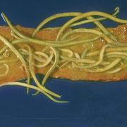 Nematodos intestinales del género Ascris