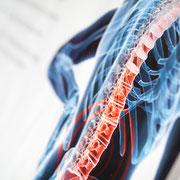 Rückenschmerzen, das Leiden der heutigen Zeit