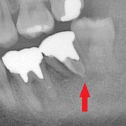 左下の7番が縦に割れてしまって抜歯になりました。