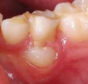 八戸市の歯科くぼた歯科医院乳歯の抜歯