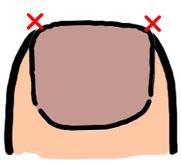 丸い形に切ったり、深爪は巻き爪の原因になるので注意!