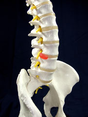 Das Bild zeigt ein Wirbelsäulenmodell mit Bandscheiben und austretenden Spinalnerven.