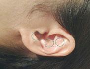 耳つぼ 拡大写真