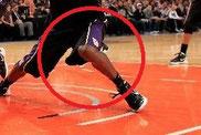 Kontuzja kolana: zerwania więzadła krzyżowego będzie wymagało długiej rehabilitacji koszykarza.