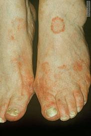 champignon sur le pied et les ongles