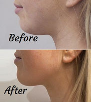 Injecting filler to reduce the jawline Dr Sarah Parkes