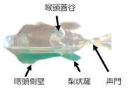 食事は声門より下の咽頭側壁にから梨状窩に溜まり誤嚥しない