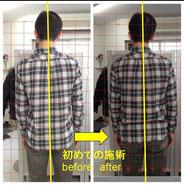 重心が偏っていいる方も首の歪みの調整で体の軸がしっかりしてきます。