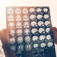 Ergotherapie Riesa Weida Neurologie  Demenz Schlaganfall Parkinson Hirnleistungstraining Anziehtraining Ergotherapeuth