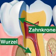 Zahnkrone
