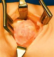 Bild: Operative Entfernung eines Ganglions