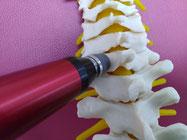 カイロプラクティックしもんで行うアクティベータ療法での腰痛施術