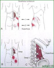 股関節痛トリガーポイント