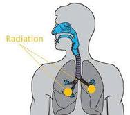 Lungenkrebs, Radon, Lungenzersetzung, Schmutzablagerung, Raucher,