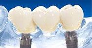 Dr. Thomas Steinmeier Zahnarzt Oeynhausen Zahnarztpraxis Implantate Zahnerhalt Zahnheilkunde OWL Zahnimplantologie