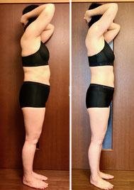 50代主婦 美ボディ痩身 12回コース 体験結果 横