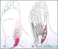 母趾外転筋が原因で外反母趾
